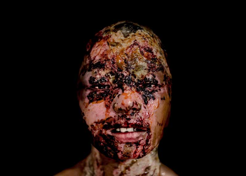The scarred face of an acid attack survivor by Zoriah.